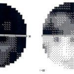 campo_visivo_dopo_un_trauma_e_in_seguito_a_trattamento_con_lieve_corrente_elettrica-500_pixel.jpg